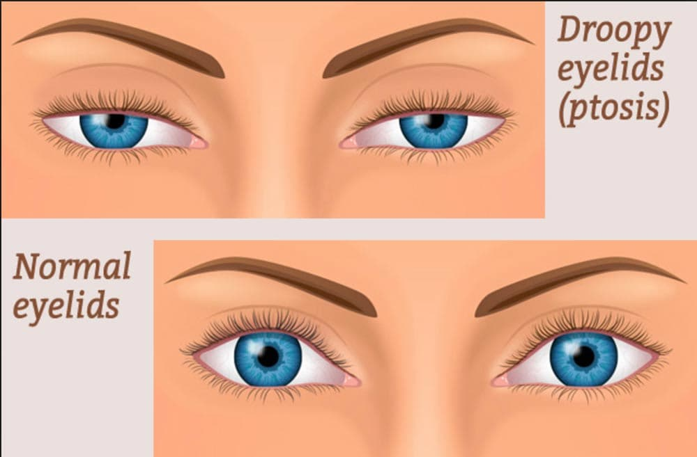 ptosis vs normal eyelids graphic