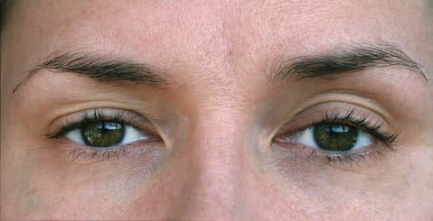 Closeup of Ptosis in an adult eye