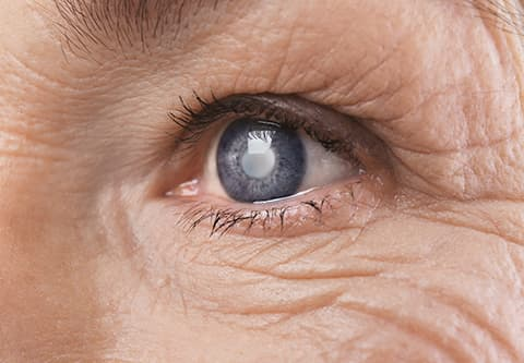 Close up of cataract in eye of senior woman