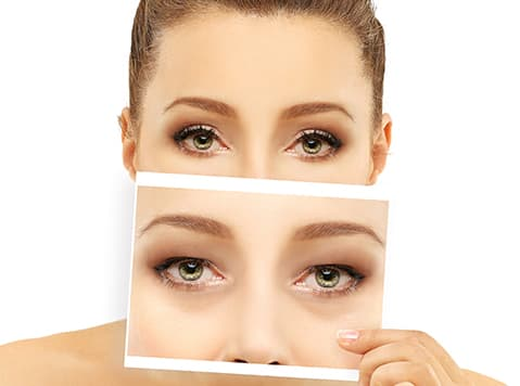 Woman holding a before photo of upper and lower blepharoplasty